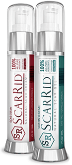 ScarRid gel and cream for scar removal